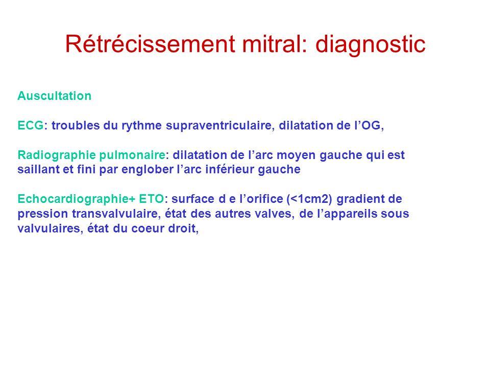 Rétrécissement mitral: diagnostic
