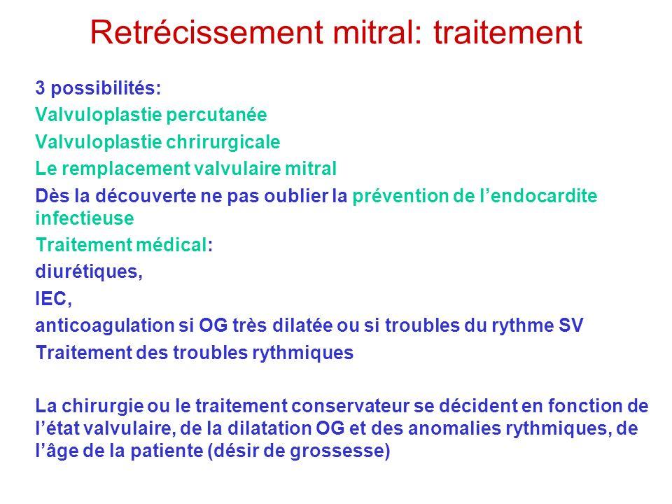 Retrécissement mitral: traitement