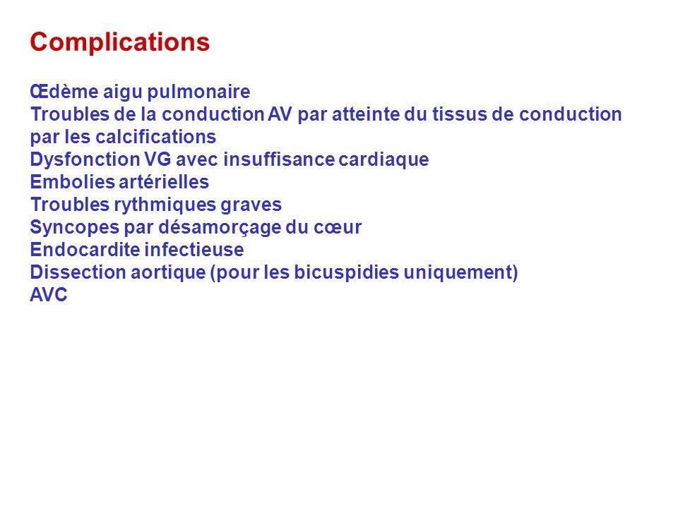 Complications Œdème aigu pulmonaire
