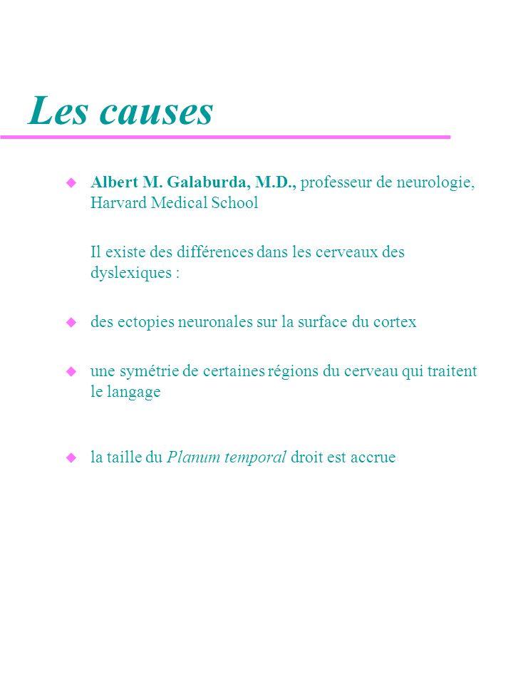 Les causes Albert M. Galaburda, M.D., professeur de neurologie, Harvard Medical School.