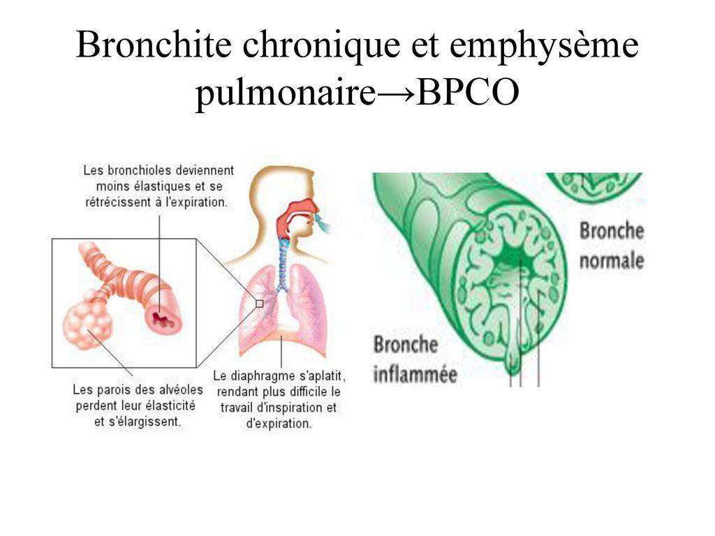 Syndromes respiratoires - ppt télécharger
