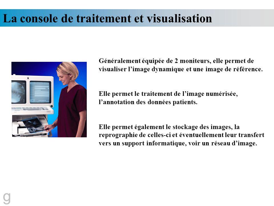 g La console de traitement et visualisation