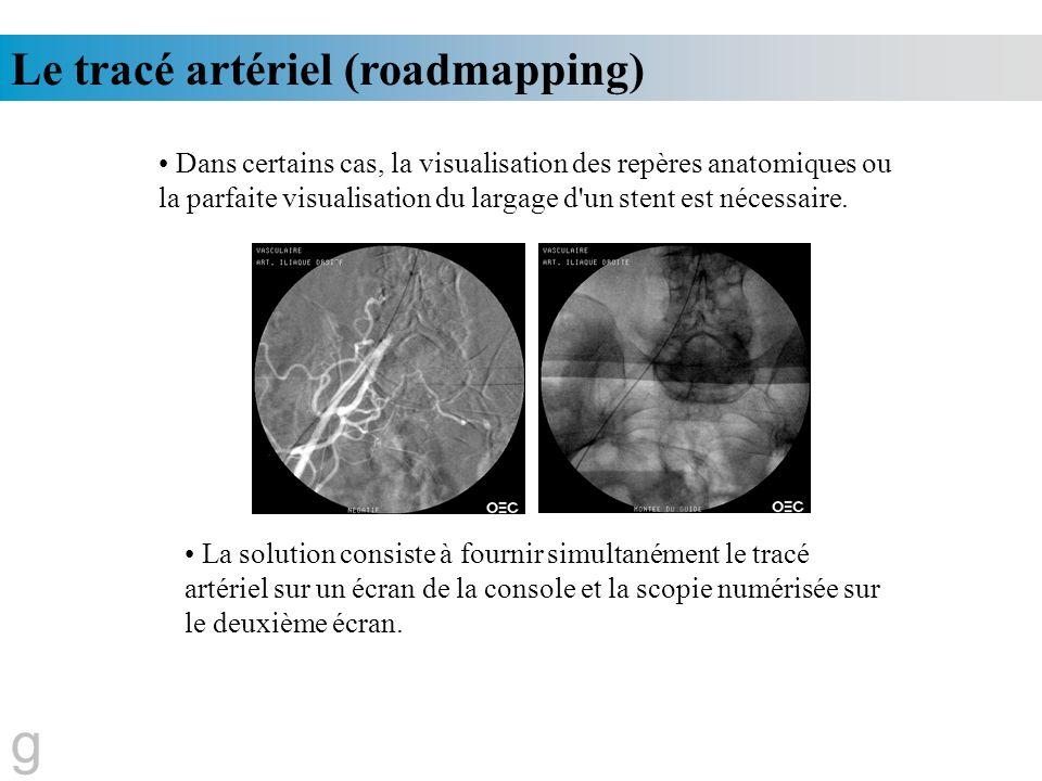 g Le tracé artériel (roadmapping)