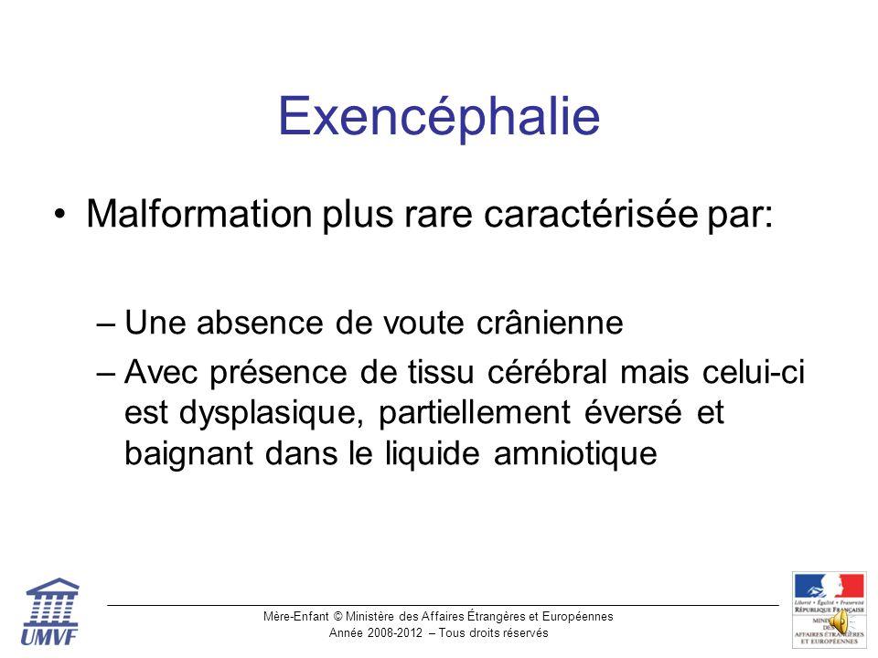 Exencéphalie Malformation plus rare caractérisée par: