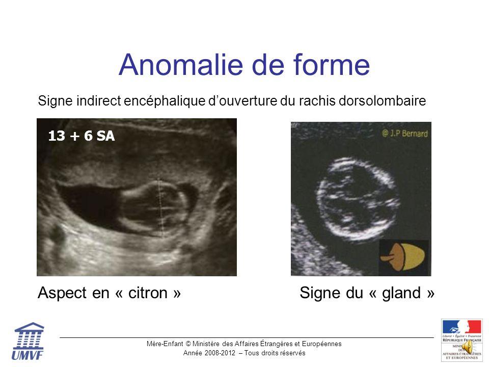 Anomalie de forme Aspect en « citron » Signe du « gland »