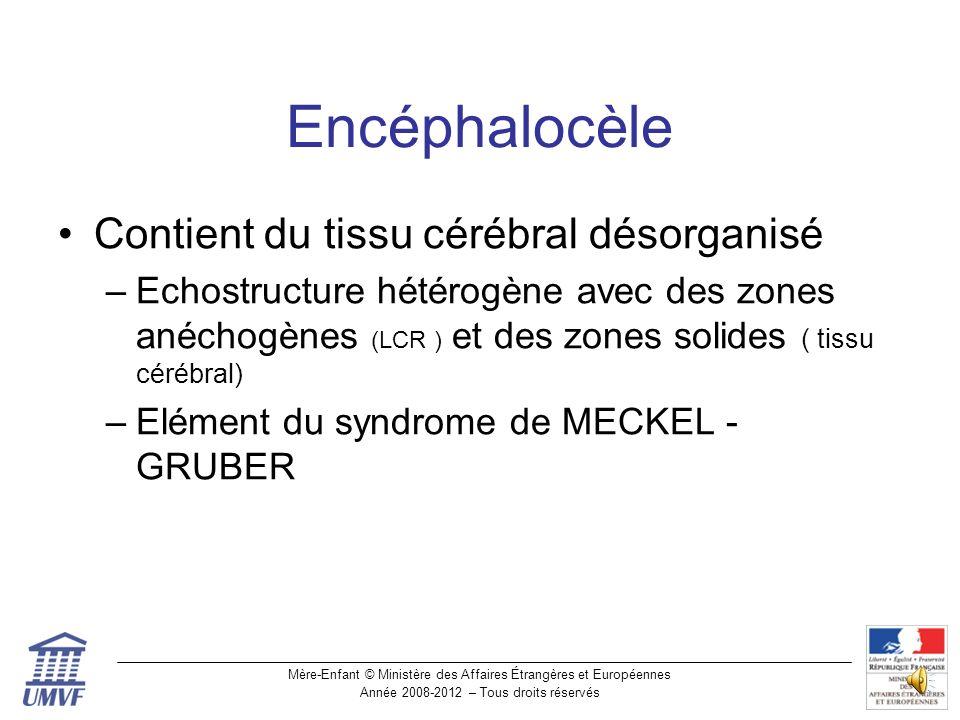 Encéphalocèle Contient du tissu cérébral désorganisé