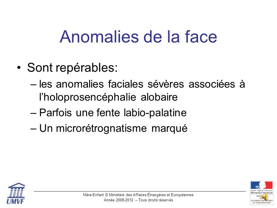Anomalies de la face Sont repérables:
