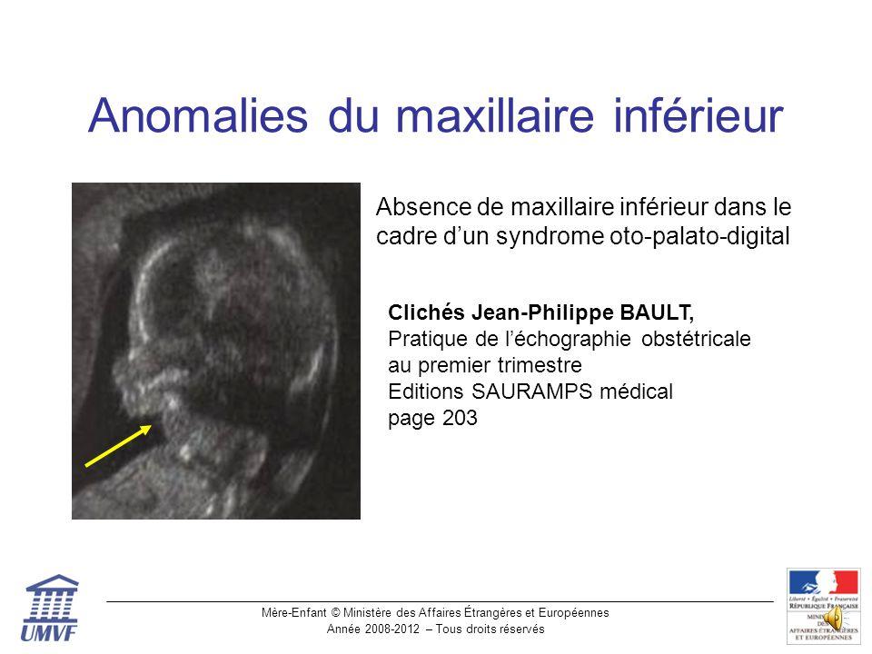 Anomalies du maxillaire inférieur