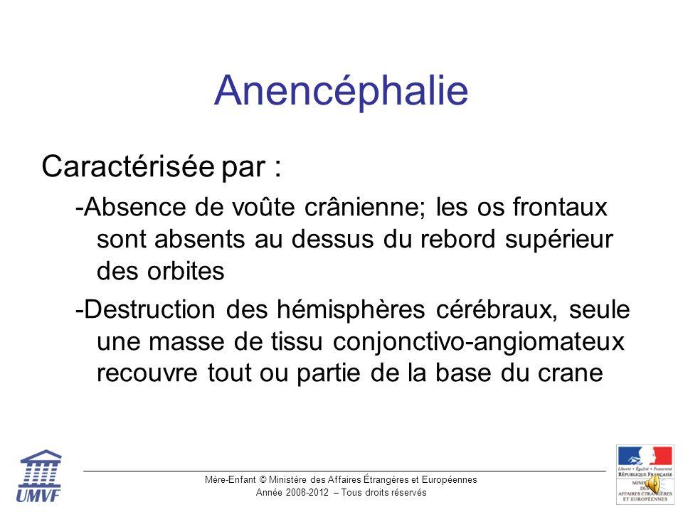 Anencéphalie Caractérisée par :