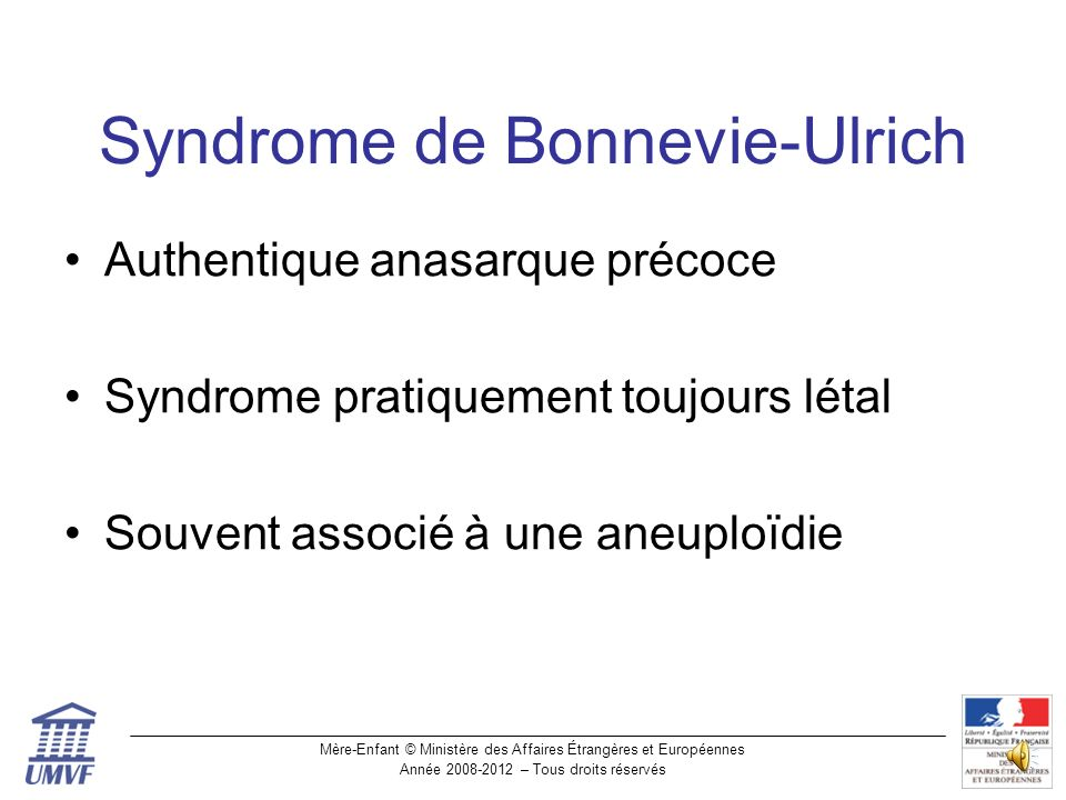 Syndrome de Bonnevie-Ulrich