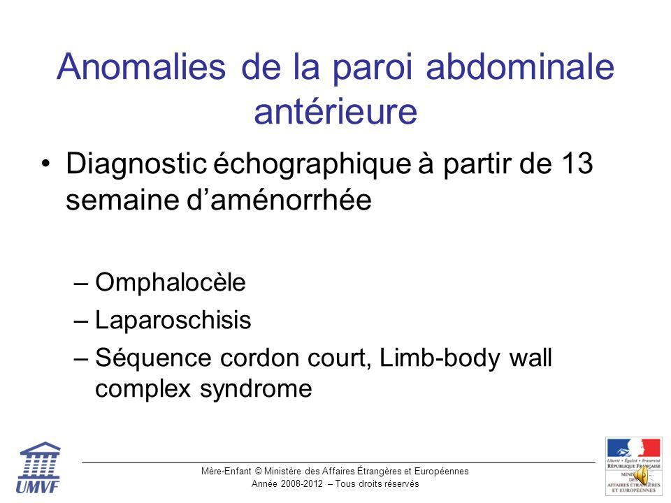 Anomalies de la paroi abdominale antérieure