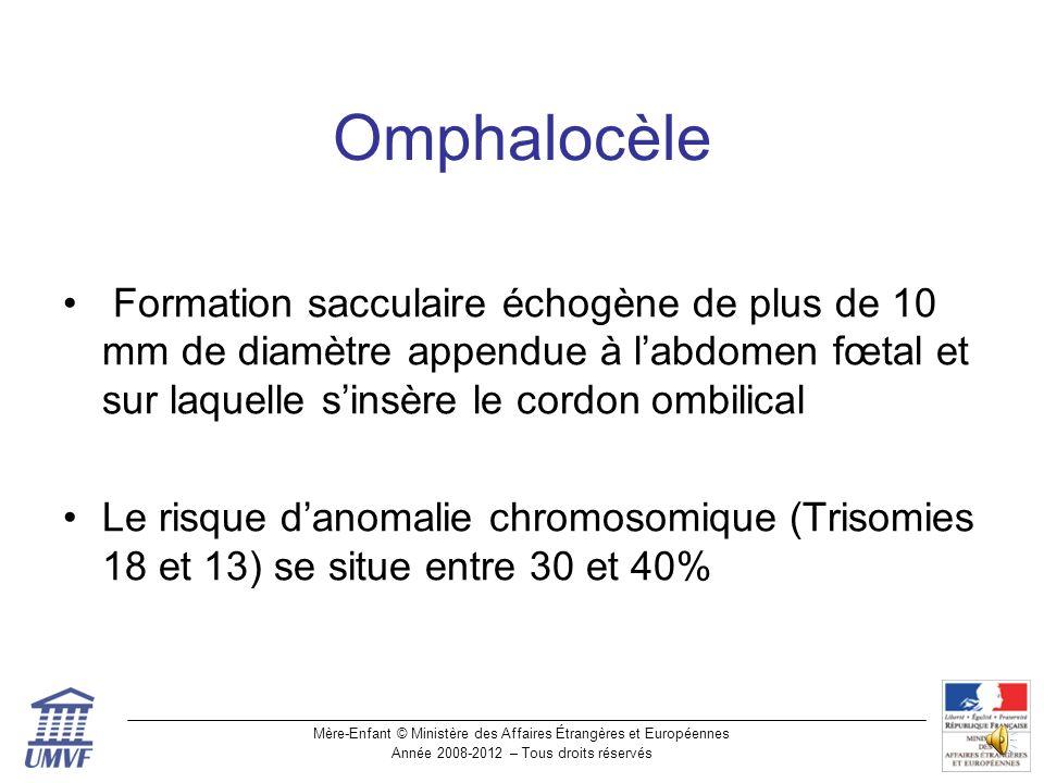 Omphalocèle Formation sacculaire échogène de plus de 10 mm de diamètre appendue à l'abdomen fœtal et sur laquelle s'insère le cordon ombilical.