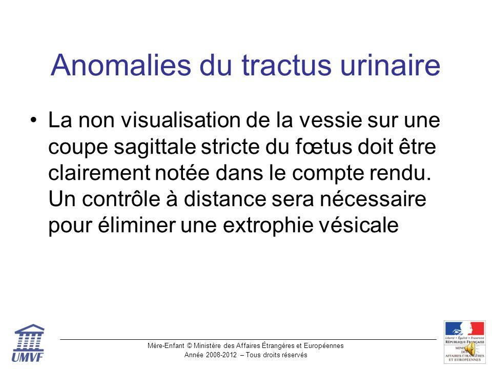 Anomalies du tractus urinaire