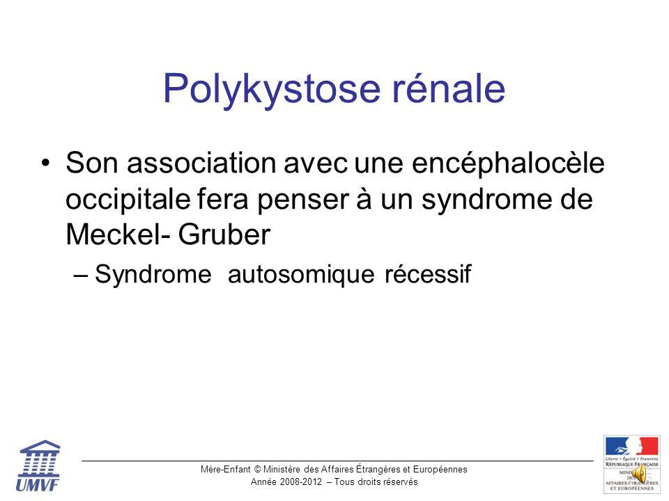 Polykystose rénale Son association avec une encéphalocèle occipitale fera penser à un syndrome de Meckel- Gruber.