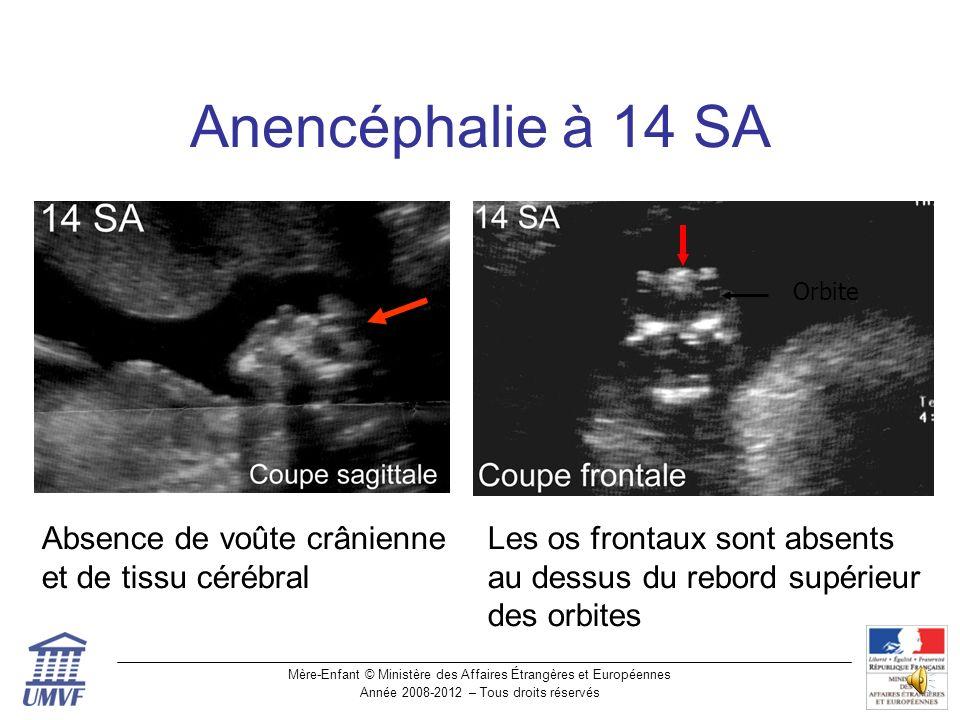 Anencéphalie à 14 SA Absence de voûte crânienne et de tissu cérébral