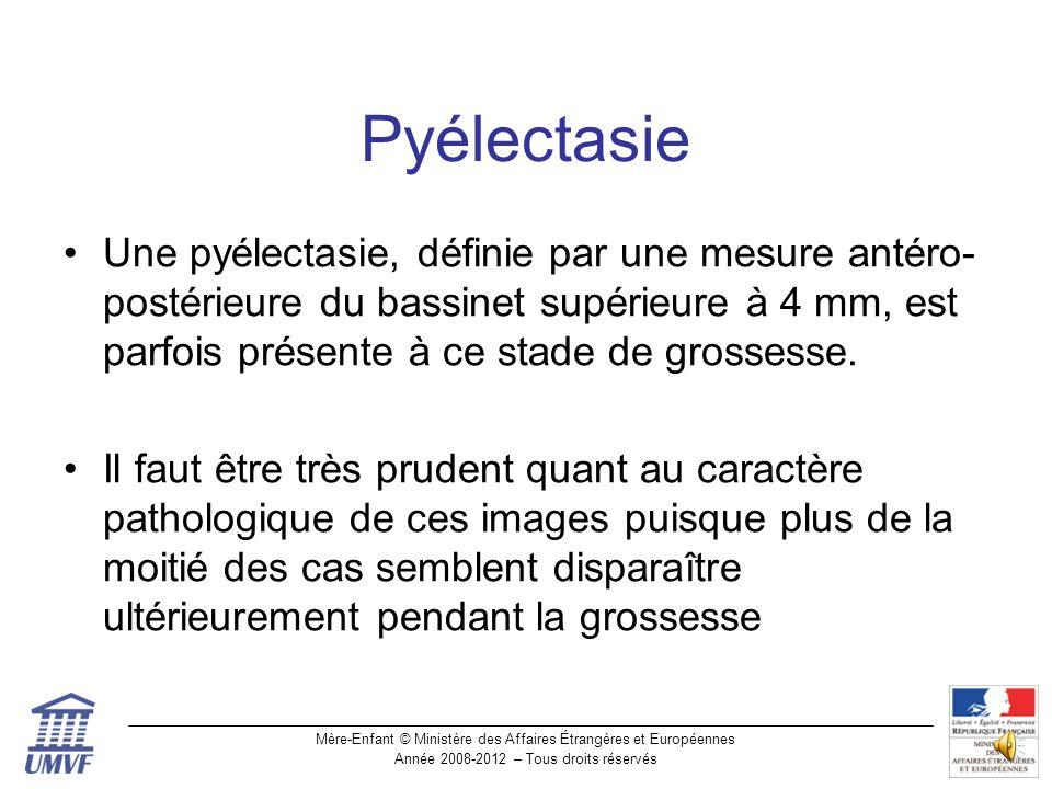 Pyélectasie Une pyélectasie, définie par une mesure antéro-postérieure du bassinet supérieure à 4 mm, est parfois présente à ce stade de grossesse.