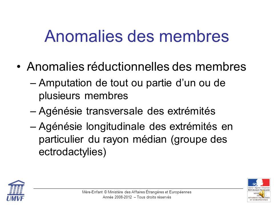 Anomalies des membres Anomalies réductionnelles des membres