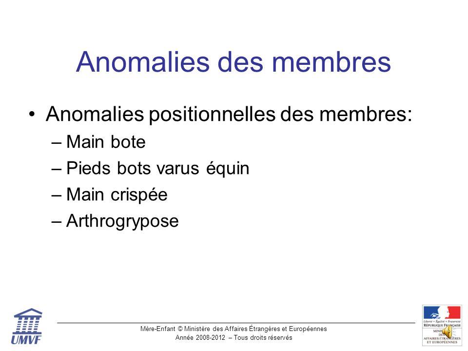 Anomalies des membres Anomalies positionnelles des membres: Main bote