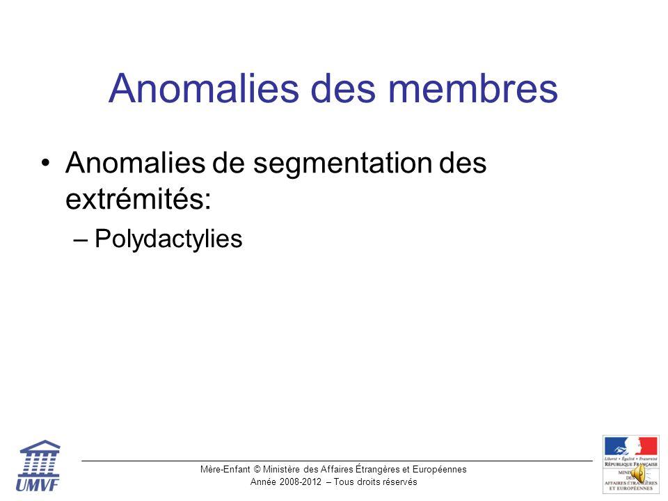 Anomalies des membres Anomalies de segmentation des extrémités: