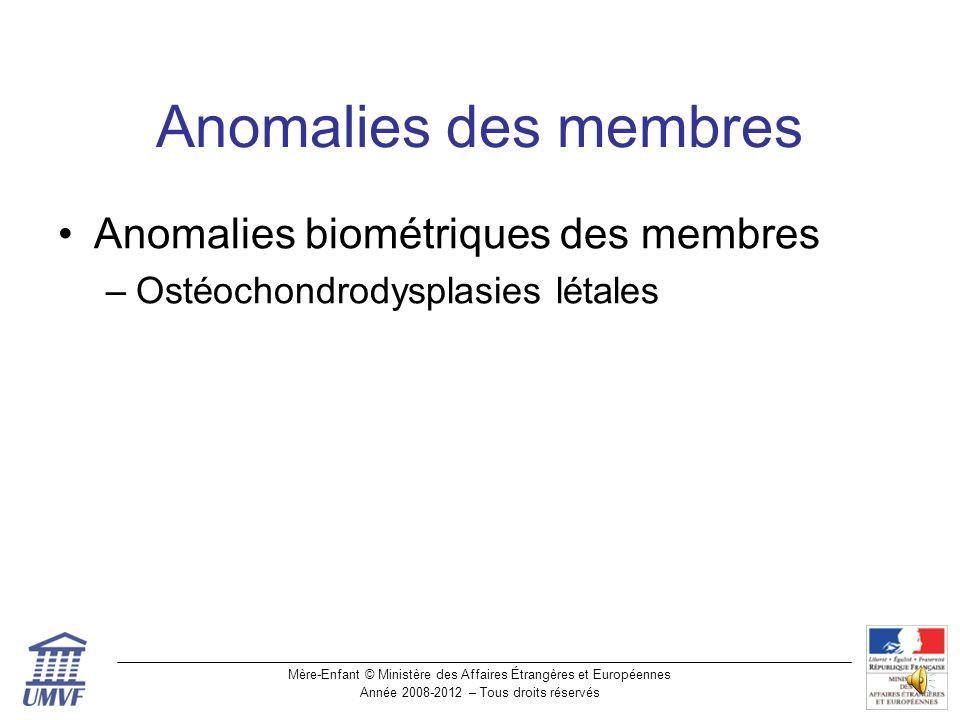 Anomalies des membres Anomalies biométriques des membres