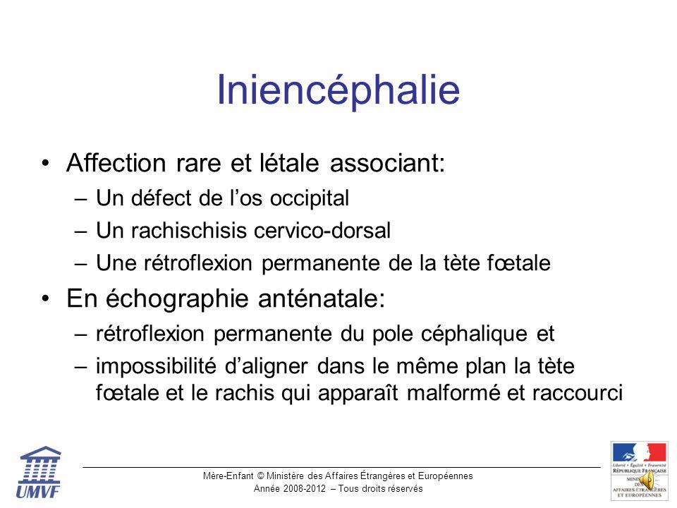 Iniencéphalie Affection rare et létale associant: