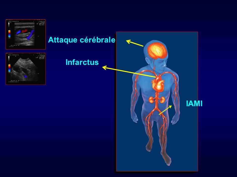 Attaque cérébrale Infarctus IAMI