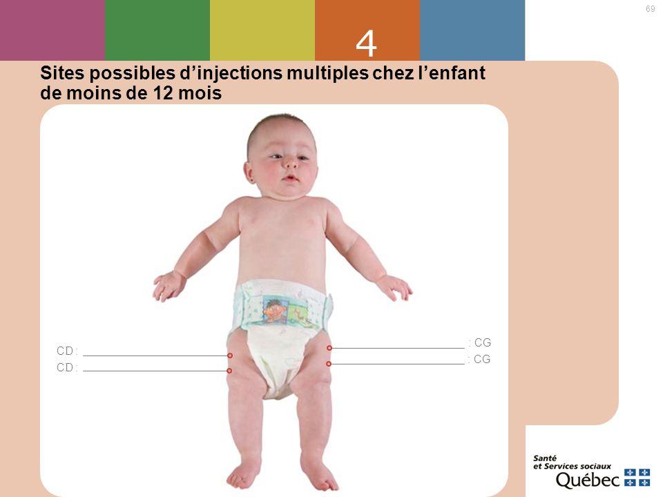 4 Sites possibles d'injections multiples chez l'enfant de moins de 12 mois : CG CD : : CG CD :