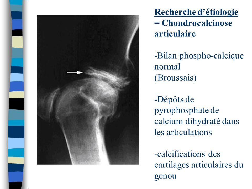 Recherche d'étiologie = Chondrocalcinose articulaire -Bilan phospho-calcique normal (Broussais) -Dépôts de pyrophosphate de calcium dihydraté dans les articulations -calcifications des cartilages articulaires du genou