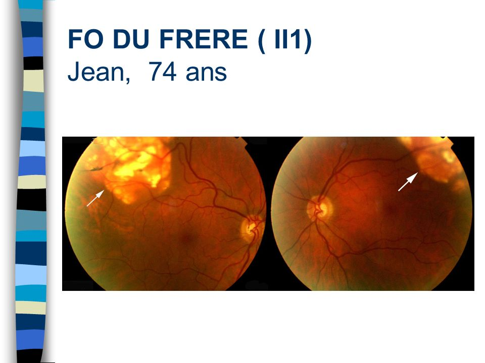 FO DU FRERE ( II1) Jean, 74 ans