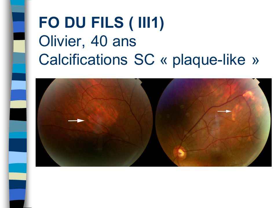 FO DU FILS ( III1) Olivier, 40 ans Calcifications SC « plaque-like »