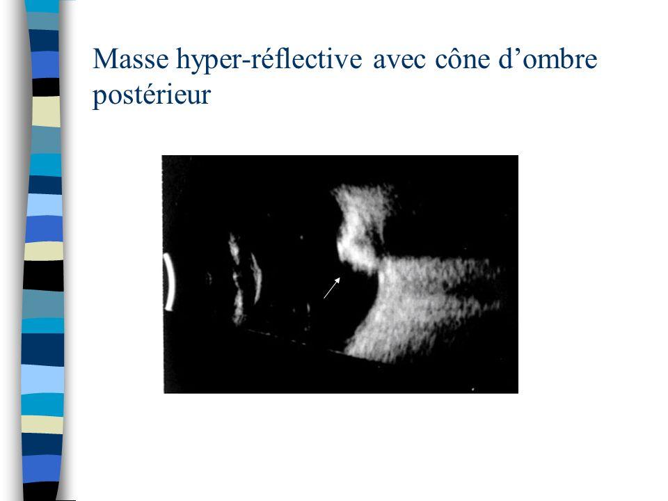 Masse hyper-réflective avec cône d'ombre postérieur