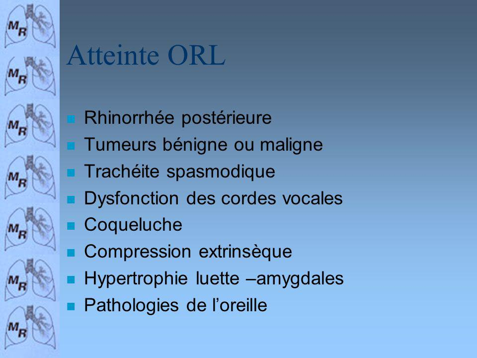 Atteinte ORL Rhinorrhée postérieure Tumeurs bénigne ou maligne