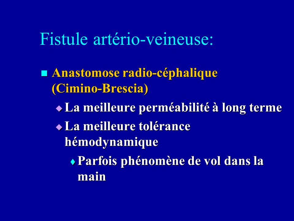 Fistule artério-veineuse: