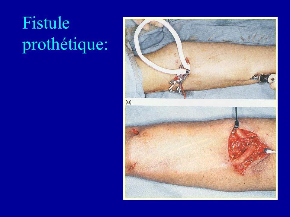 Fistule prothétique: