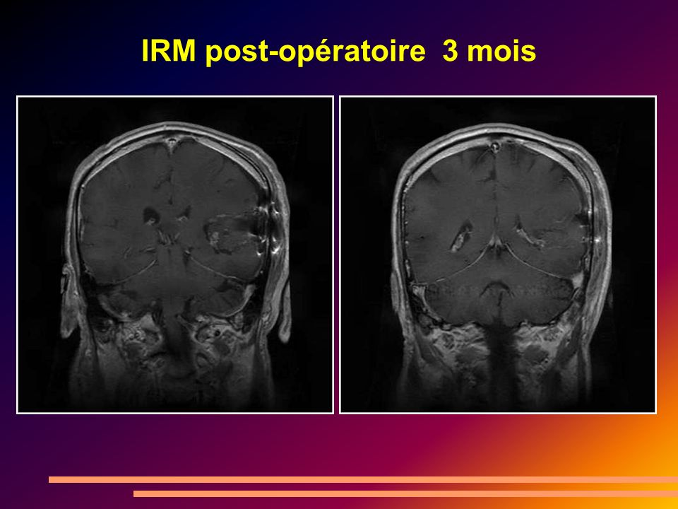 IRM post-opératoire 3 mois