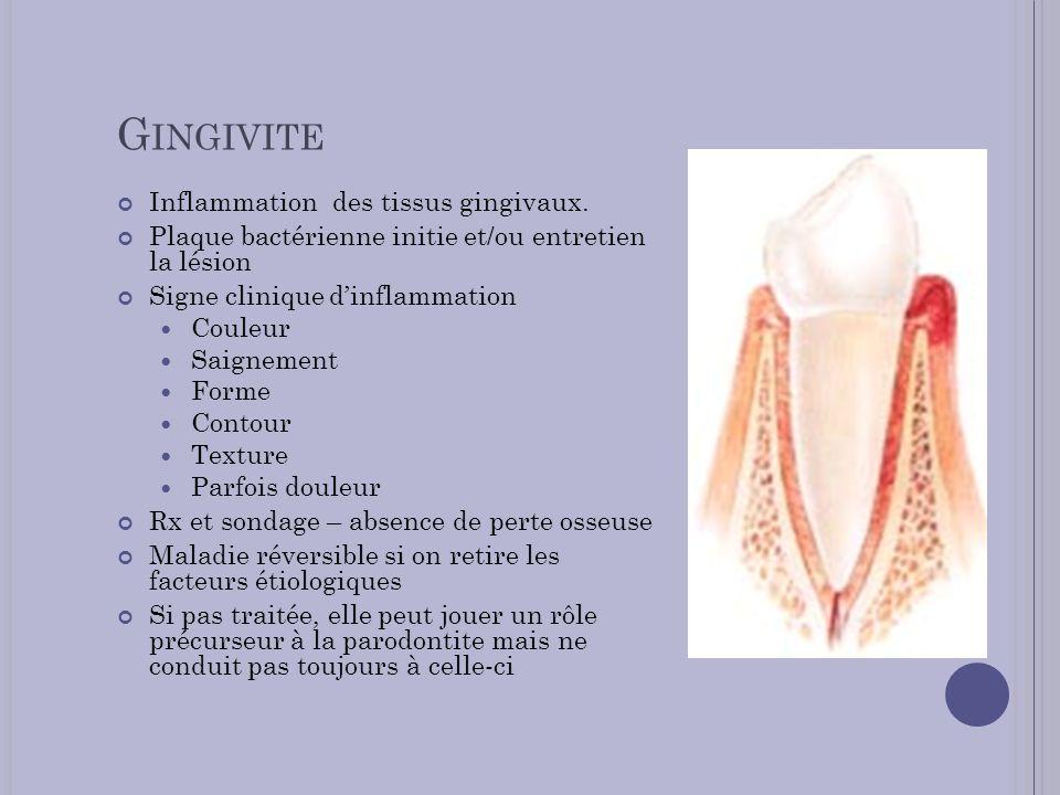 Gingivite Inflammation des tissus gingivaux.