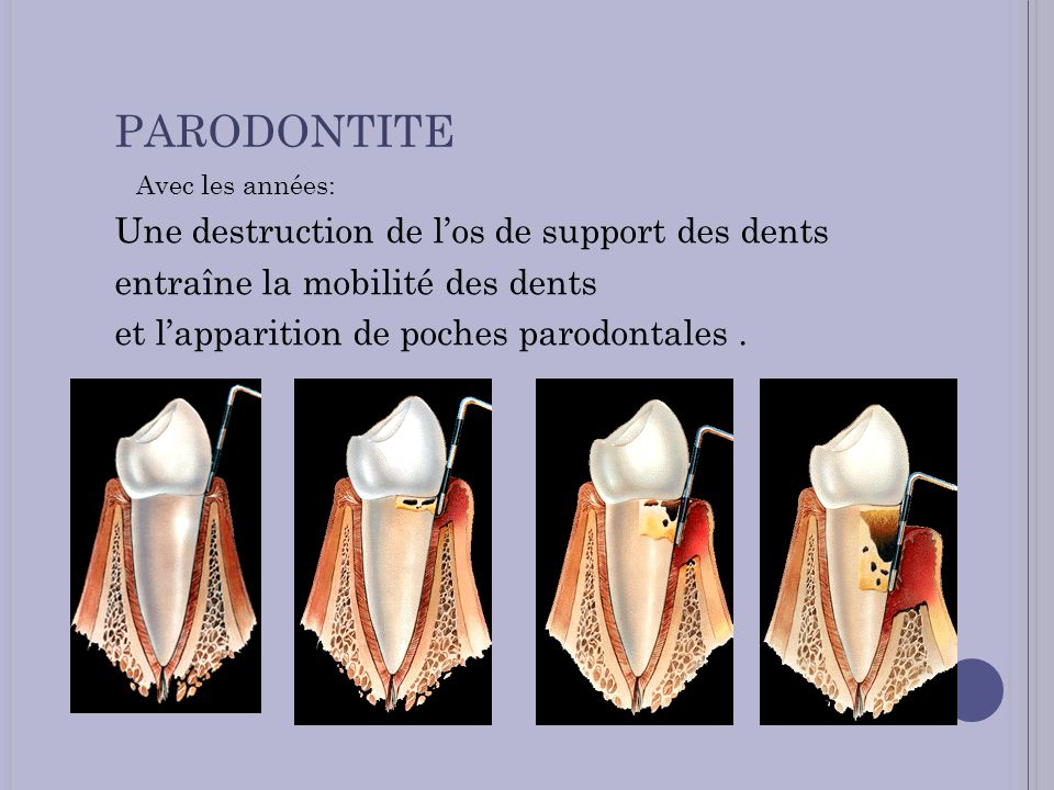 PARODONTITE Une destruction de l'os de support des dents