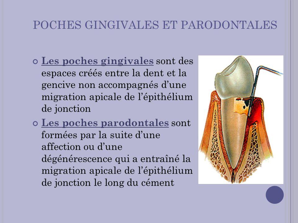 POCHES GINGIVALES ET PARODONTALES