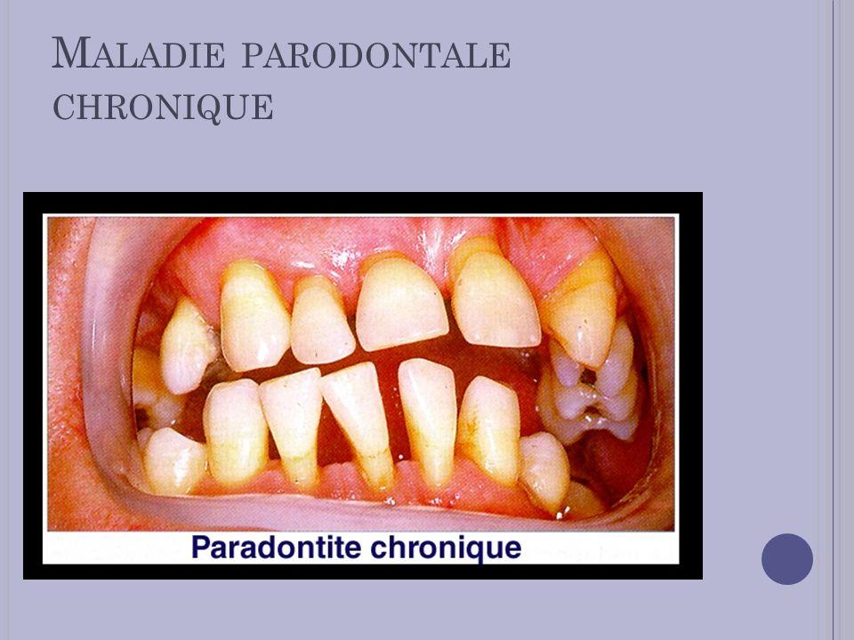 Maladie parodontale chronique