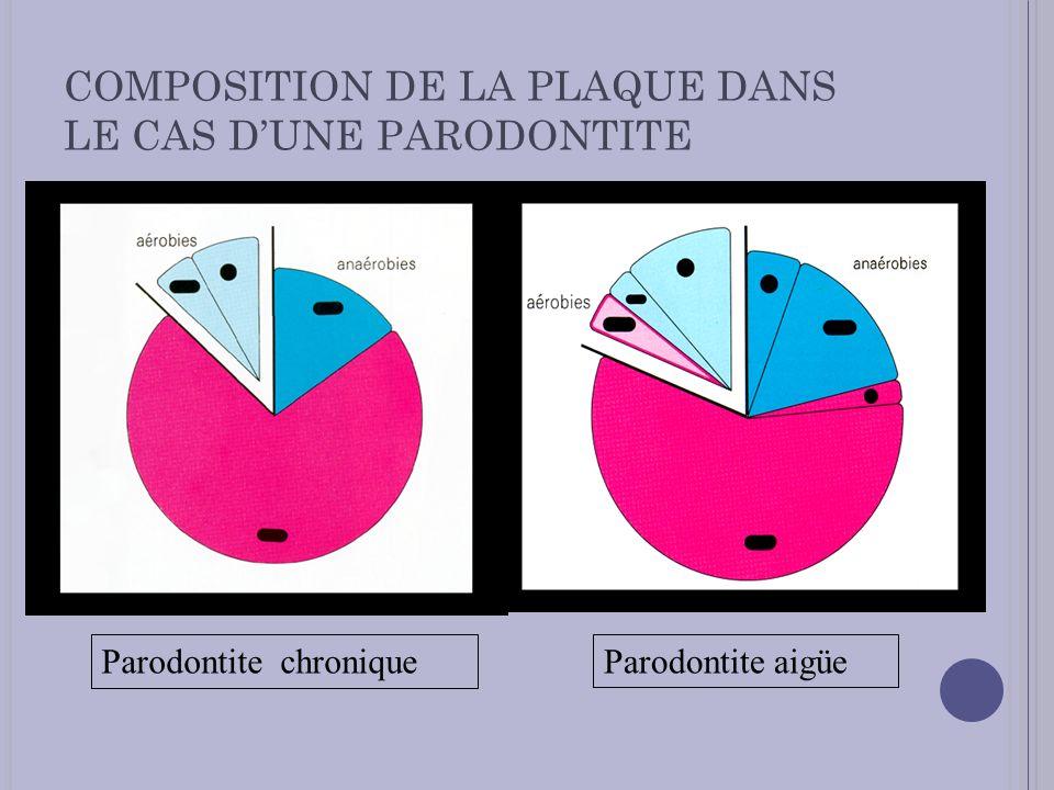 COMPOSITION DE LA PLAQUE DANS LE CAS D'UNE PARODONTITE