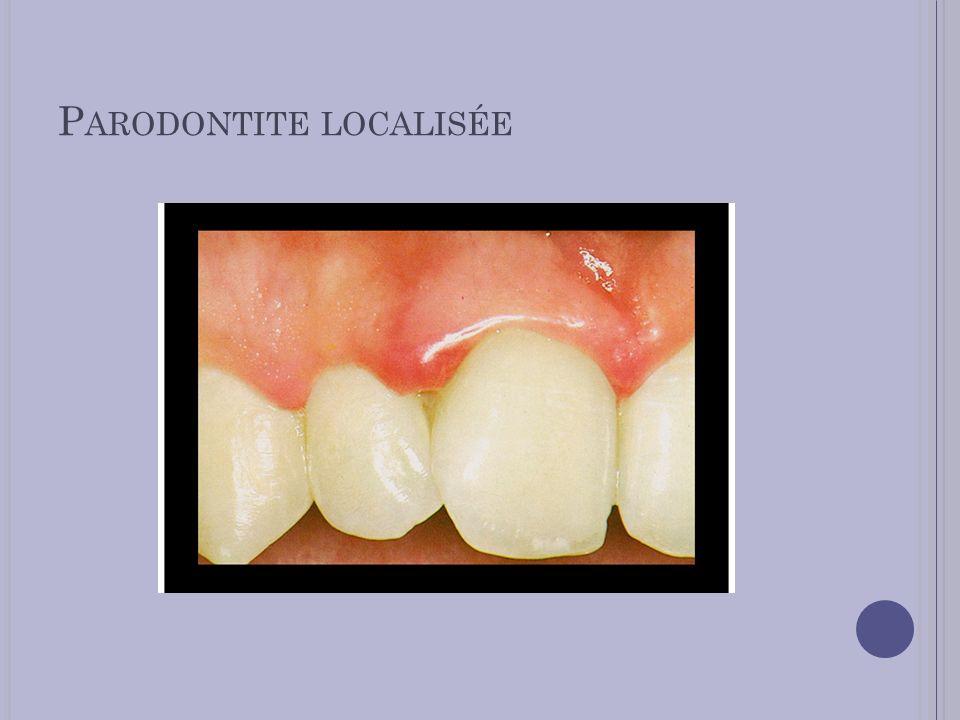 Parodontite localisée