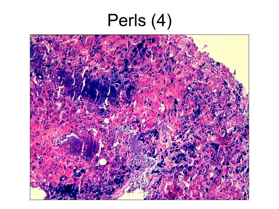 Perls (4)