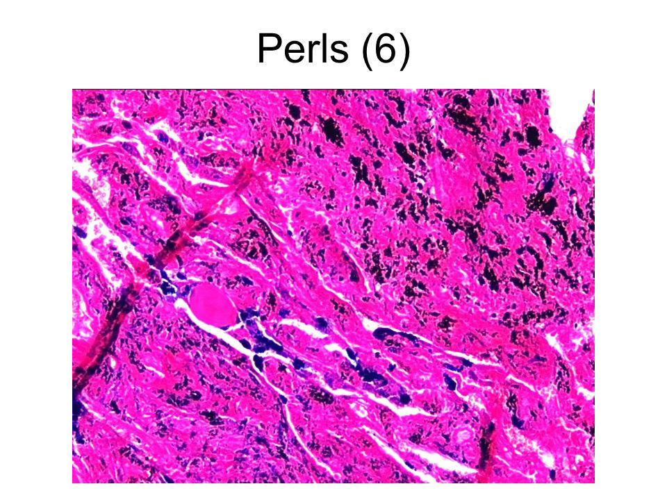 Perls (6)