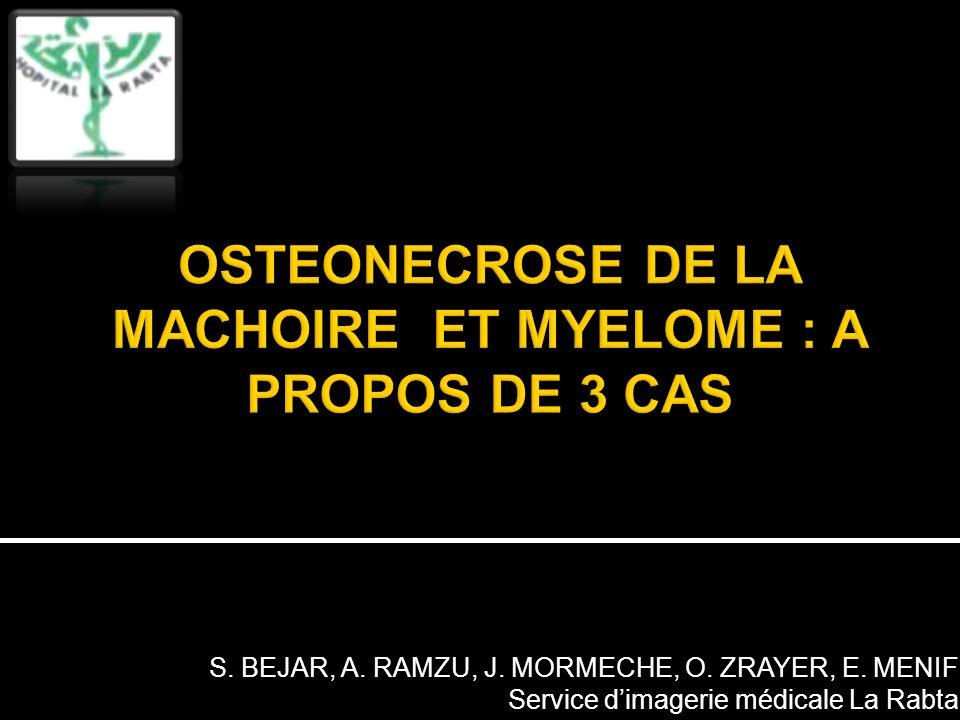 OSTEONECROSE DE LA MACHOIRE ET MYELOME : A PROPOS DE 3 CAS
