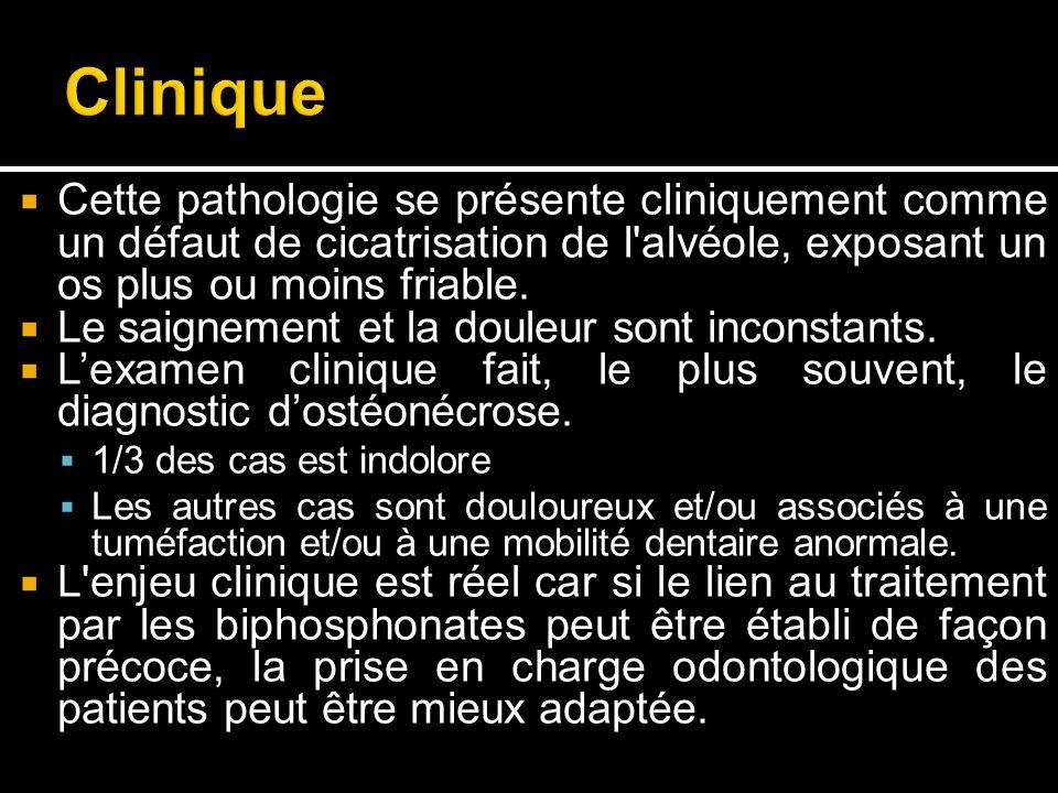 Clinique Cette pathologie se présente cliniquement comme un défaut de cicatrisation de l alvéole, exposant un os plus ou moins friable.