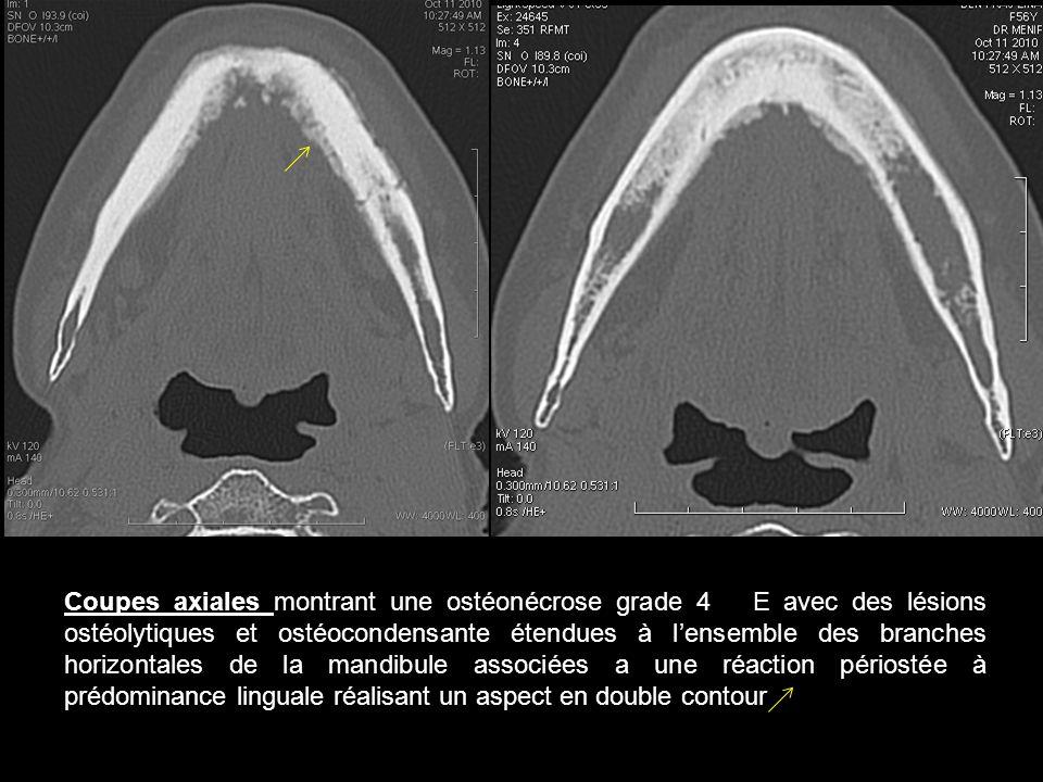 Coupes axiales montrant une ostéonécrose grade 4 E avec des lésions ostéolytiques et ostéocondensante étendues à l'ensemble des branches horizontales de la mandibule associées a une réaction périostée à prédominance linguale réalisant un aspect en double contour