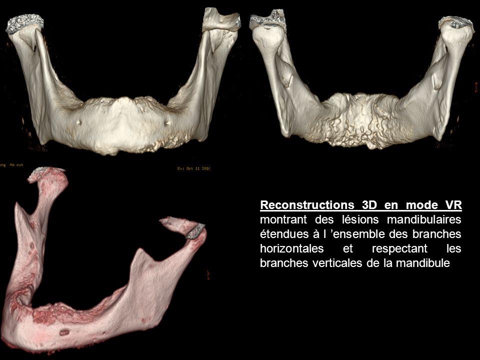 Reconstructions 3D en mode VR montrant des lésions mandibulaires étendues à l 'ensemble des branches horizontales et respectant les branches verticales de la mandibule