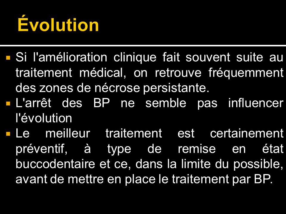 Évolution Si l amélioration clinique fait souvent suite au traitement médical, on retrouve fréquemment des zones de nécrose persistante.