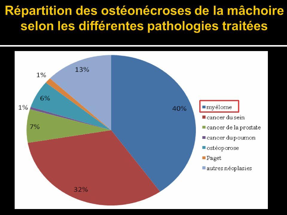 Répartition des ostéonécroses de la mâchoire selon les différentes pathologies traitées