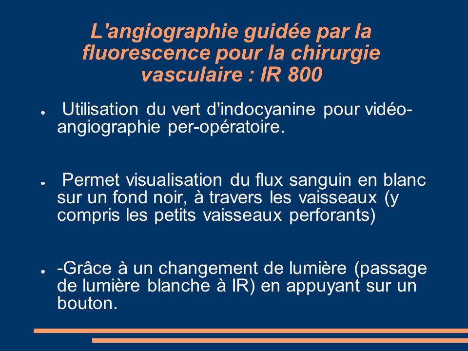 L angiographie guidée par la fluorescence pour la chirurgie vasculaire : IR 800